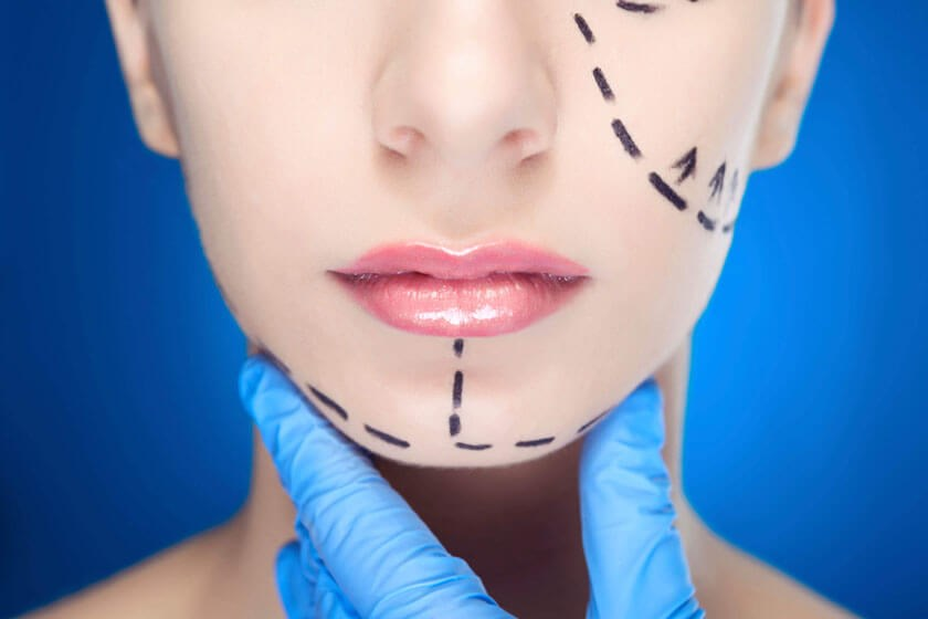 Photo illustration showing facial plastic surgery incisions